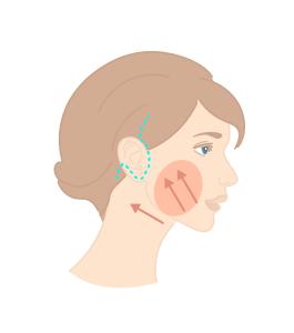 Intervention et cicatrices pour un lifting complet