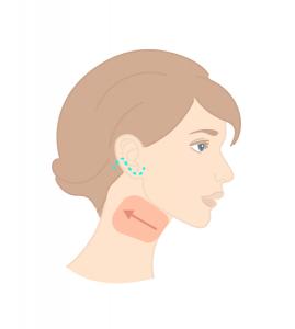 Intervention et cicatrices pour un lifting du cou