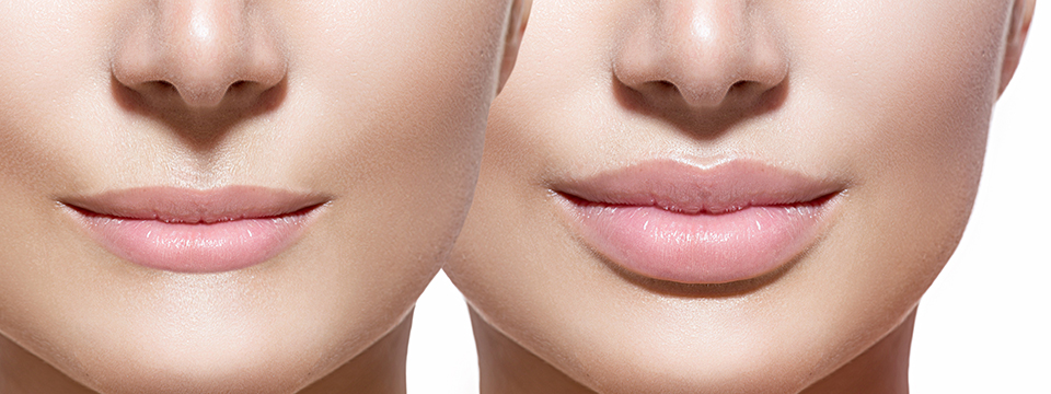Lip augmentation with fillers injection at Clinic BeauCare