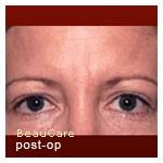 Botox contre les rides d'expression et la transpiration