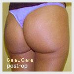 Chirurgie des fesses à l'aide d'une prothèse fesse
