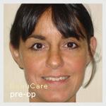 Opération des oreilles: Soins post-opératoires
