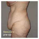 Abdominoplastiek