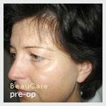 Blepharoplastiek
